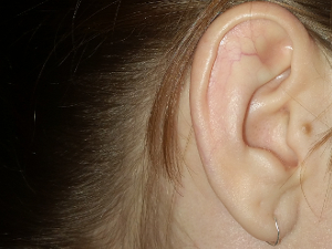 How to soothe an ear infection